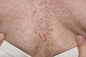 Folliculitis of the chest