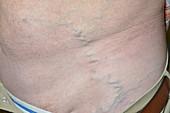 Prominent abdominal vein in retroperitoneal fibrosis