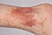 Post inflammatory skin pigmentation