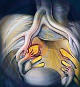Tarlov Cysts, Illustration