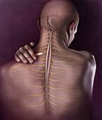 Back Pain, Illustration