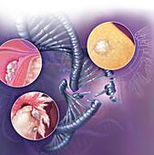Inhereted Gynelogical Cancers Illustration