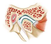 Tempromandibular Joint, Illustration