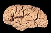 Human Brain, Cortical Atrophy