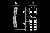 Fragile-X Chromosome with Idiogram