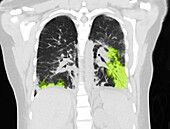 Lungs with Vaping Damage, Follow-up CT