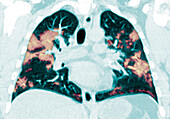 COVID-19 Lungs, CT Scan