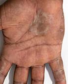 Palm callus