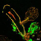 Infected tick salivary gland, light micrograph