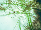 Filamentous algae, light micrograph