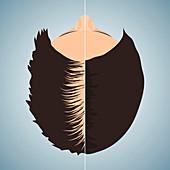Hair loss treatment for women, conceptual illustration