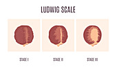 Ludwig scale of baldness in women,