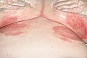 Intertrigo beneath the breasts