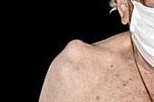 Sebaceous cyst