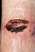 Healing laceration