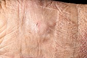 Wound after coronary angiogram