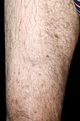 Ruptured thigh muscle