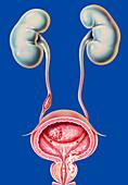 Male urogenital cancers, illustration