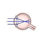 Short-sightedness, illustration
