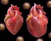 Heart inflammation in Covid-19, conceptual illustration