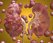 Kidney inflammation in Covid-19, conceptual illustration