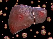 Liver inflammation in Covid-19, conceptual illustration
