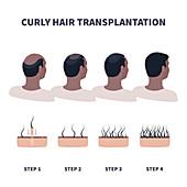 Hair transplantation, illustration