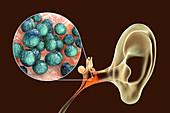 Otitis media ear infection, illustration