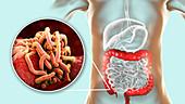 Round worms in human large intestine, illustration