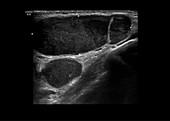 Metastatic melanoma, CT scan