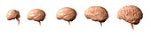 Foetal brain development, illustration