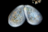 Frontonia protist, light micrograph
