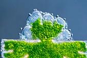 Micrasterias desmid, light micrograph