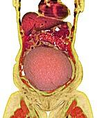 Ovarian cancer, CT scan