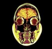Human head, MRI scan