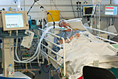 Woman on a ventilator in intensive care