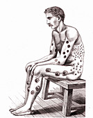 19th Century syphilis patient, illustration