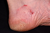 Ringworm on the foot