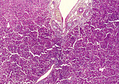 Autoimmune hepatitis, light micrograph