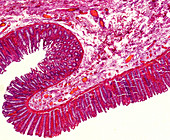 Human colon section, light micrograph