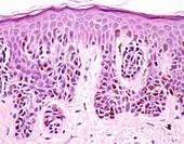 Lentigo maligna melanoma, light micrograph