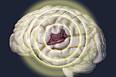 Brain haemorrhage, illustration