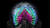 Brain infection, conceptual illustration