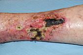 Pyoderma ulcer