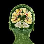 Multiple sclerosis, coronal brain MRI scan
