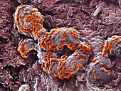 Cell infected by SARS-CoV-2 virus particles, SEM