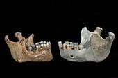 Hominin jaw comparison