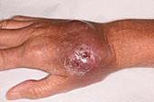 Haematoma on warfarin patient's hand