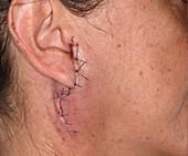Pleiomorphic adenoma excision wound