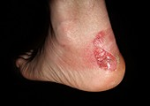 Blister and bruising from ill-fitting boots